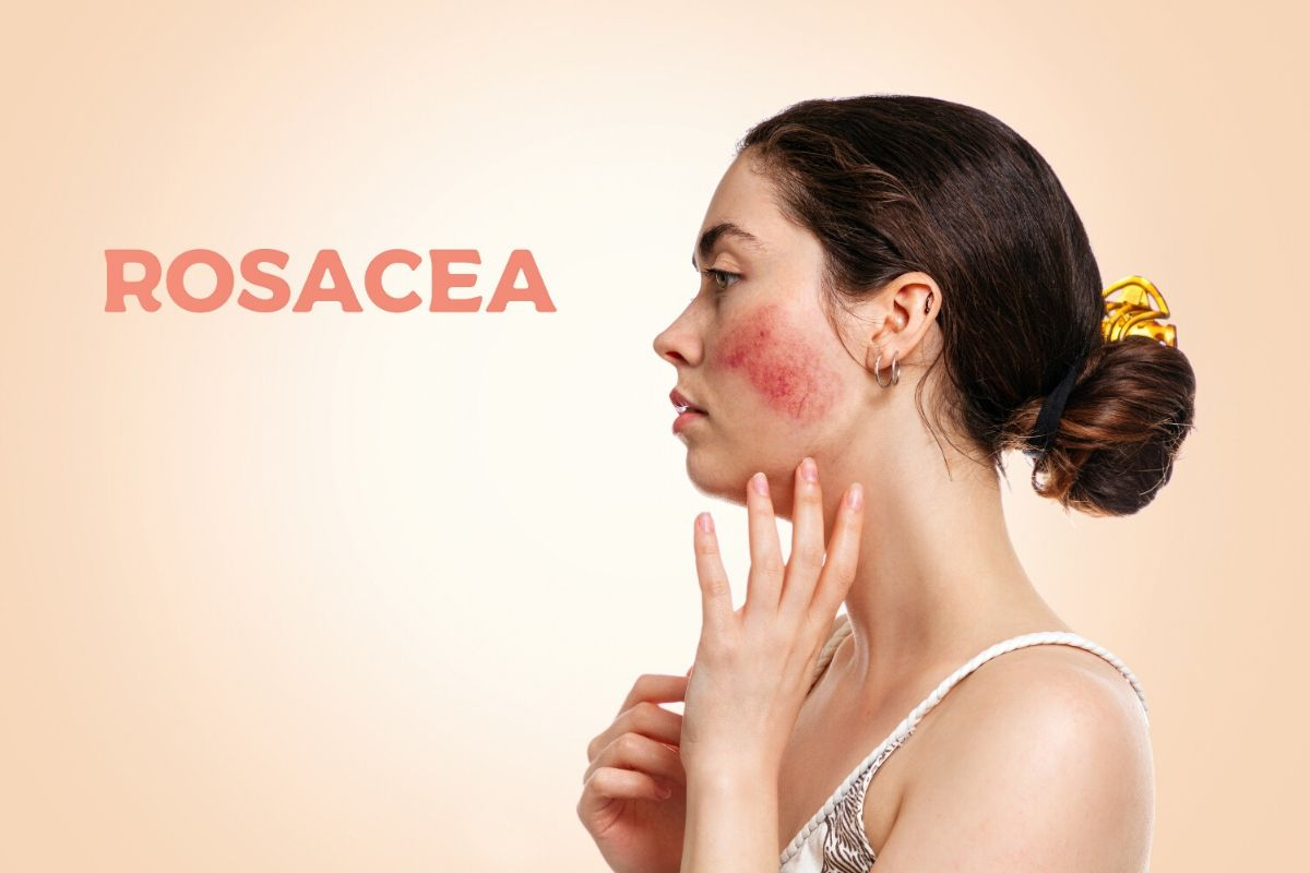 What is Rosacea - Causes, Symptoms, Treatment