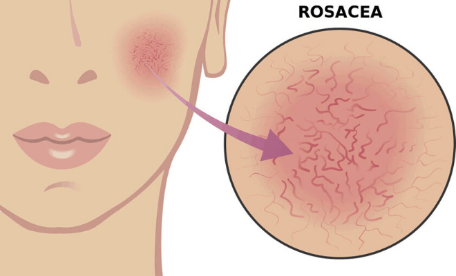 Rosacea -What Is It And How Do You Treat It?